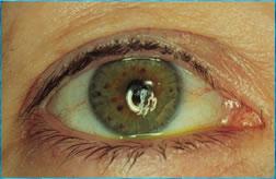 ojo seco